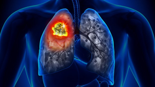Scientists find two combo drugs that kill lung cancer