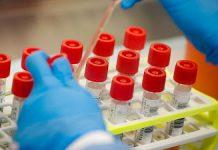 Coronavirus test -newsheadline247.com