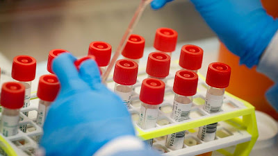 Mass testing for COVID-19 in Nigeria to commence by May – NCDC