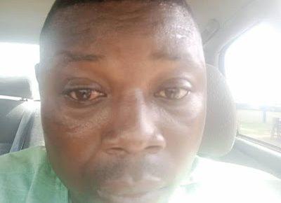 'I was brutally beaten and dragged on the floor' - Ado-Odo/ Ota LG Secretary, Muideen, accuses Police of assault - newsheadline247.com